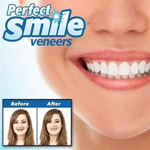 Perfect smile veneers – ราคา – ของ แท้ – รีวิว