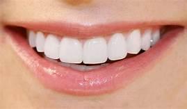 Perfect smile veneers - การฟอกสีฟัน – ผลกระทบ – lazada – สั่ง ซื้อ