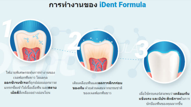 Ident Formula - การฟอกสีฟัน – ของ แท้ – รีวิว – ผลกระทบ